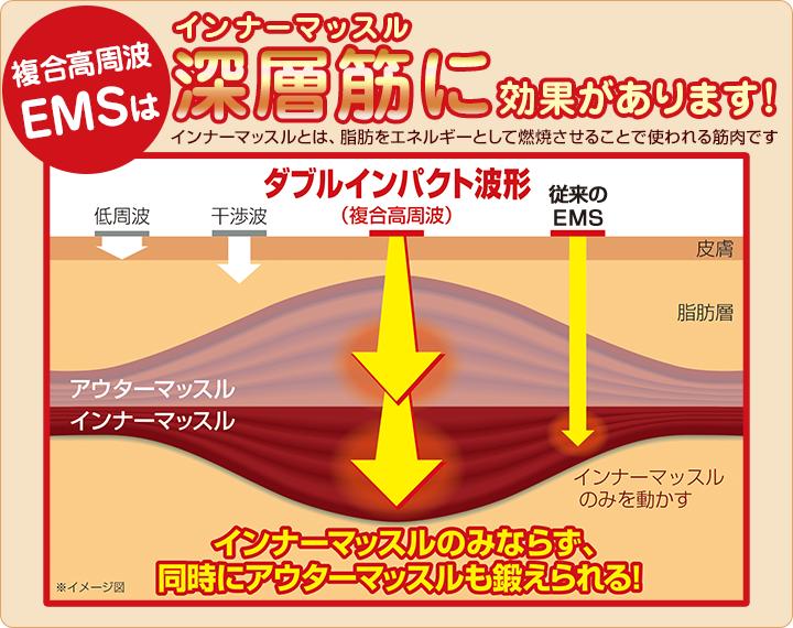 インナーマッスルトレーニング(体幹トレーニング):複合高周波EMS