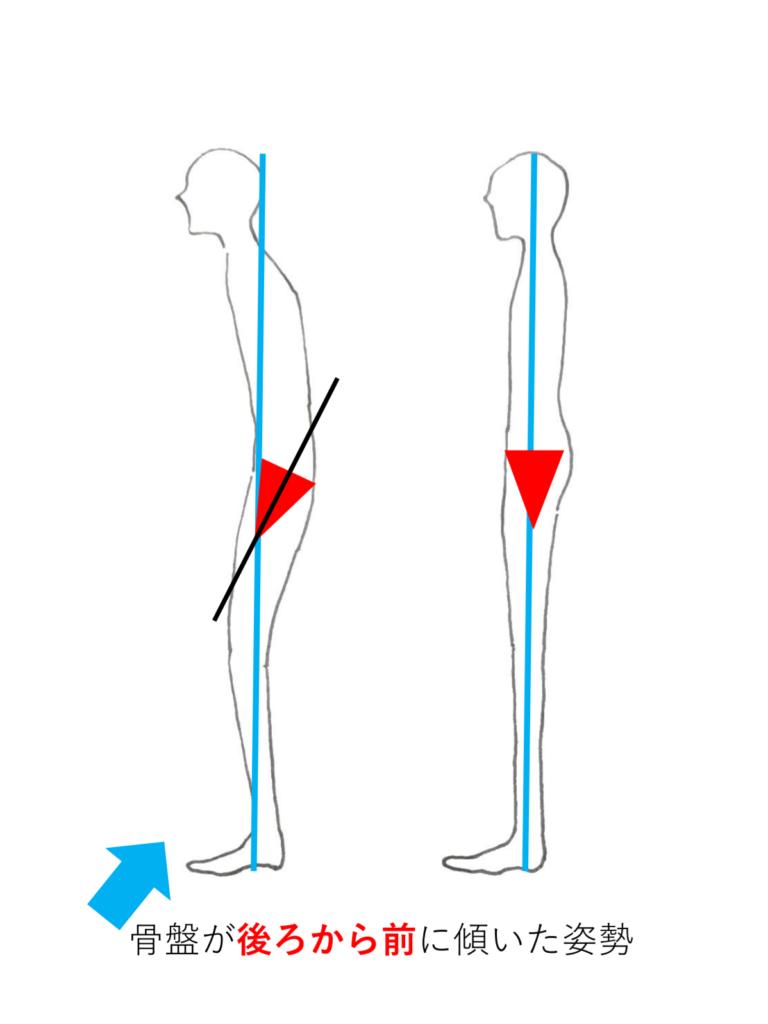 骨盤の後傾姿勢