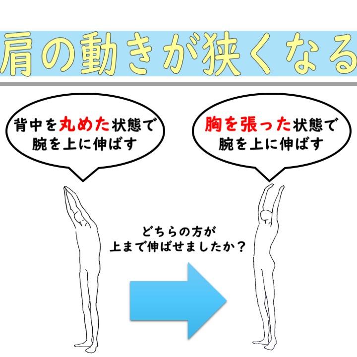 肩の可動域低下