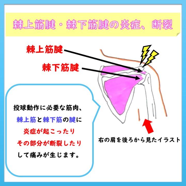 棘上筋腱・棘下筋腱の炎症、断裂