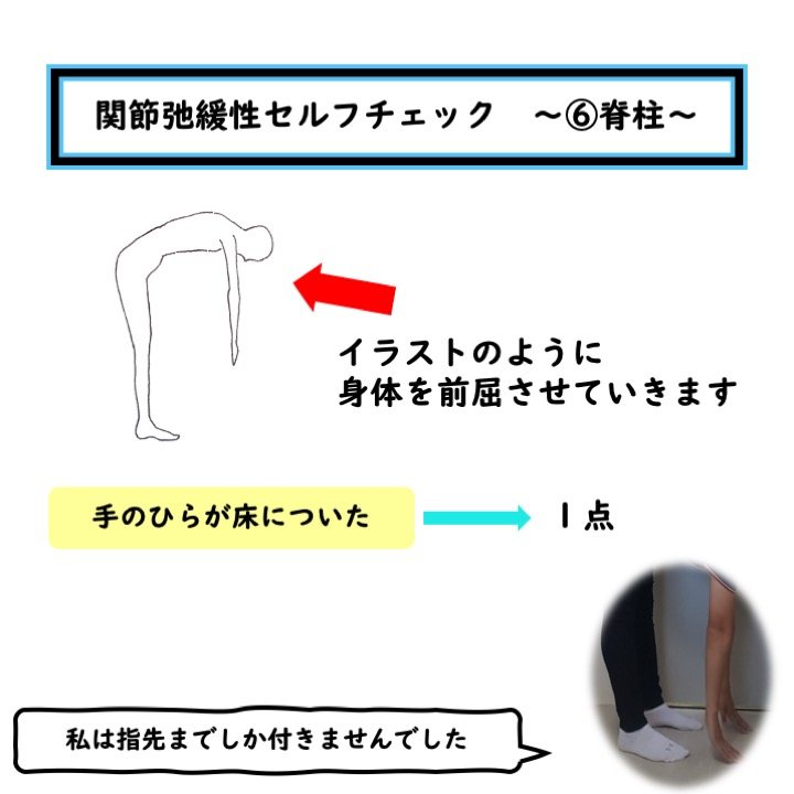 脊柱の関節弛緩性