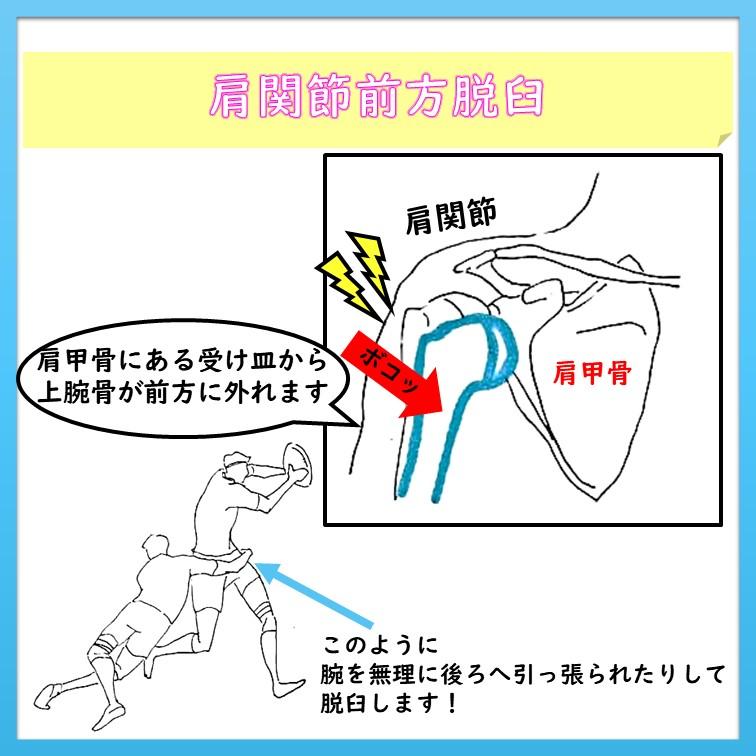 肩関節前方脱臼