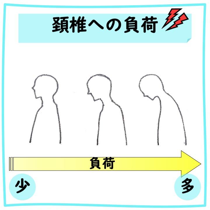 頚椎への負荷