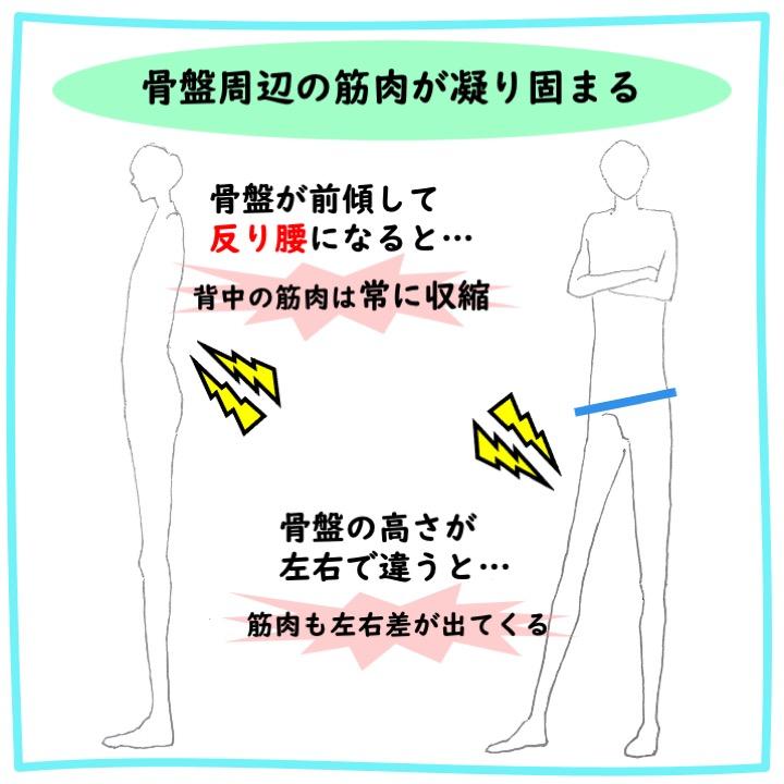 骨盤周辺筋肉の凝り