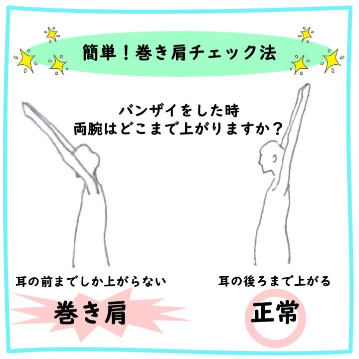 巻き肩のチェック方法