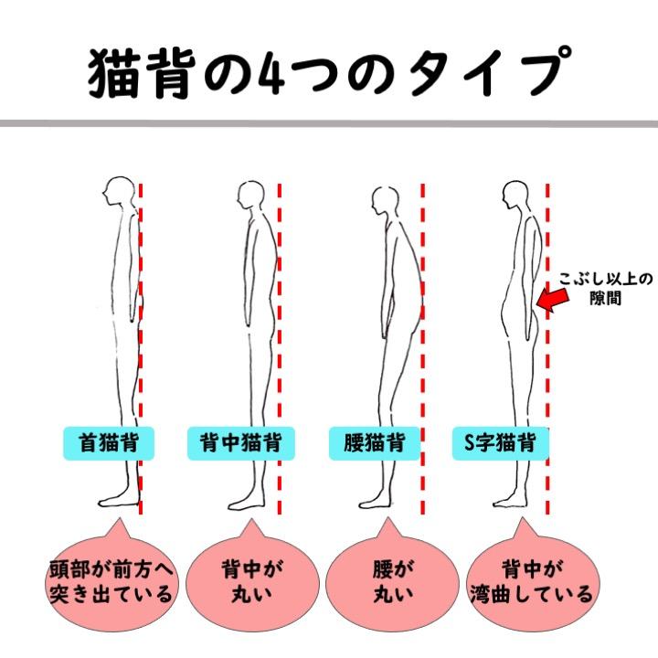 猫背の4つのタイプ