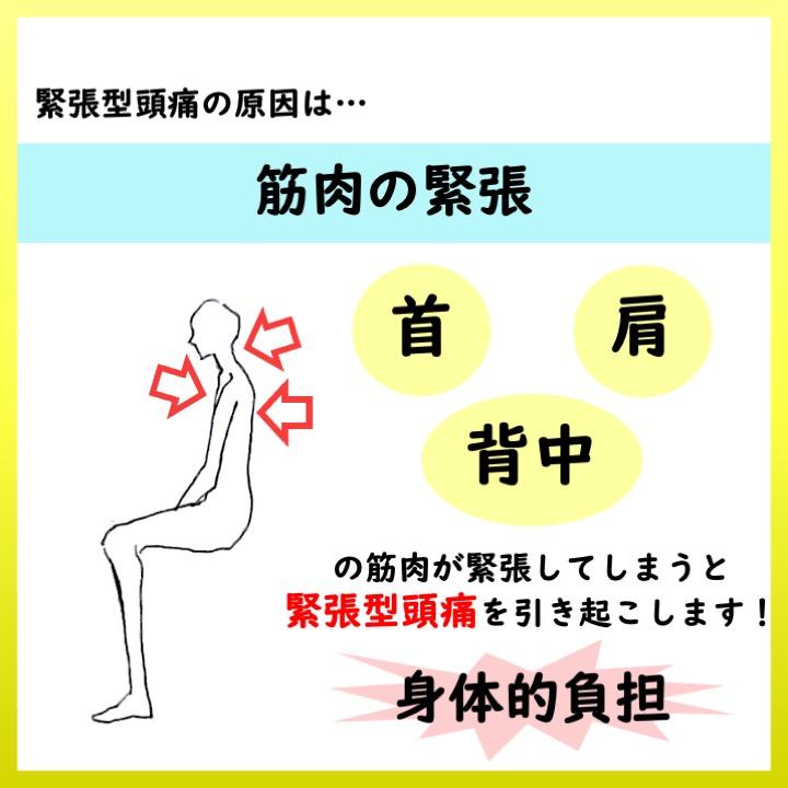 緊張型頭痛の原因 筋肉の緊張