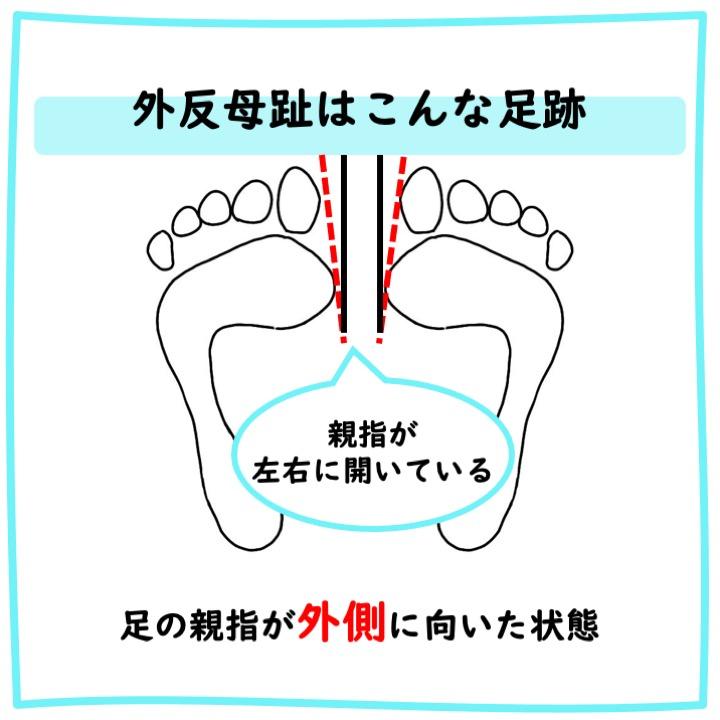 外反母趾の足跡