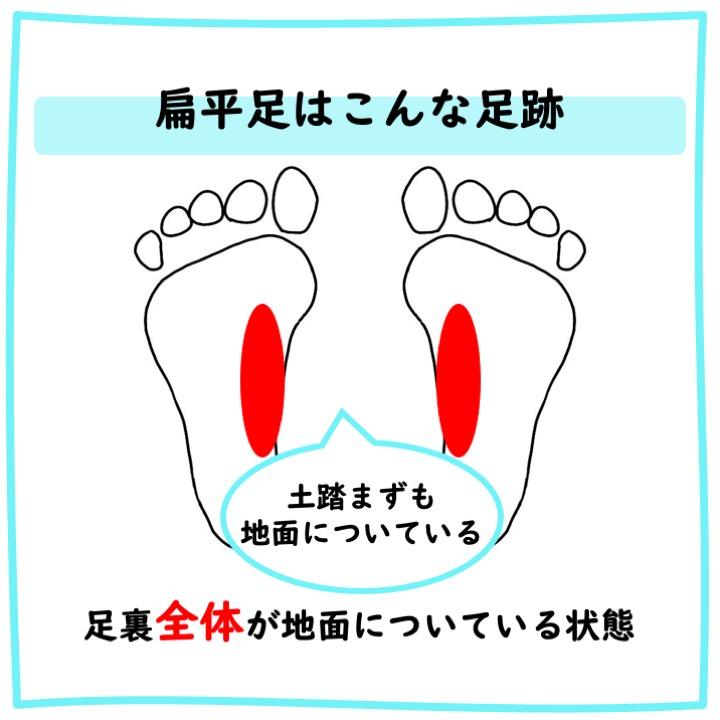 扁平足の足跡