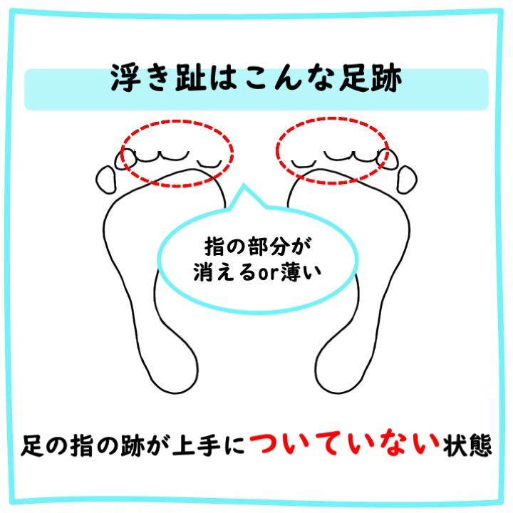 浮き趾の足跡