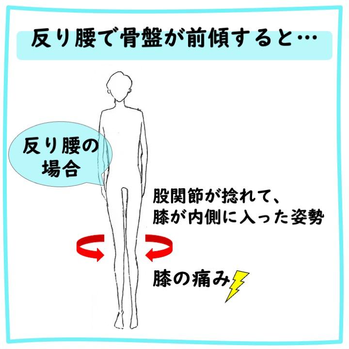 反り腰による膝の痛み
